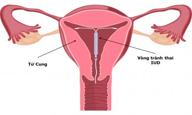 Vòng tránh thai (dụng cụ tránh thai trong tử cung)